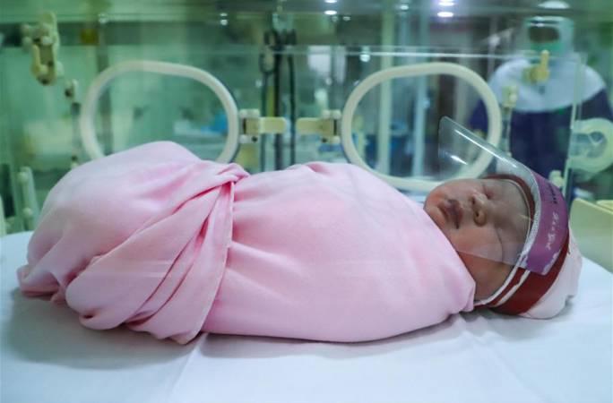 페이스 쉴드 착용한 신생아