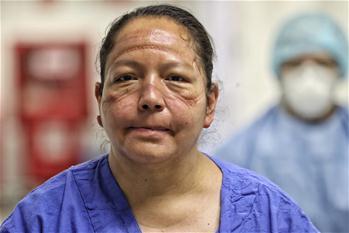 멕시코: 간호사 얼굴…마스크에 눌린 자국 가득